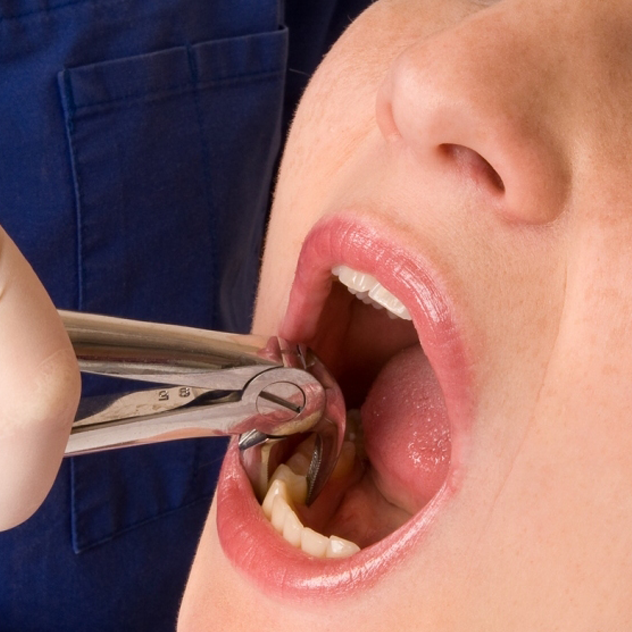 Tooth Extractions – Simple and Surgical